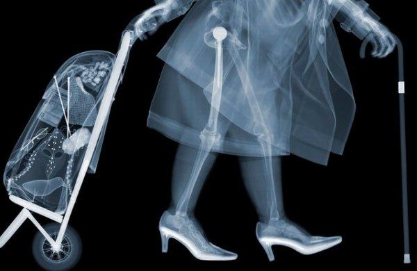 Художественные рентген-работы Ника Визи (8 фото)