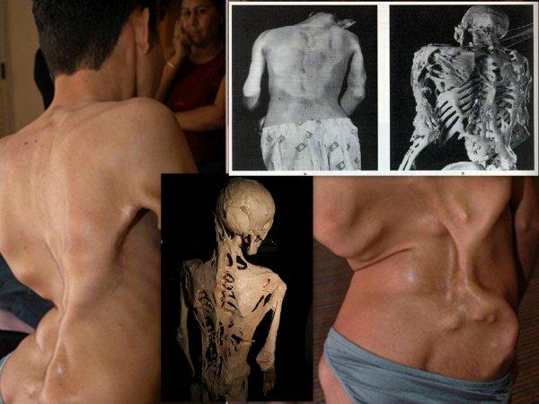 Топ-5: Самые шокирующие генетические мутации, известные науке