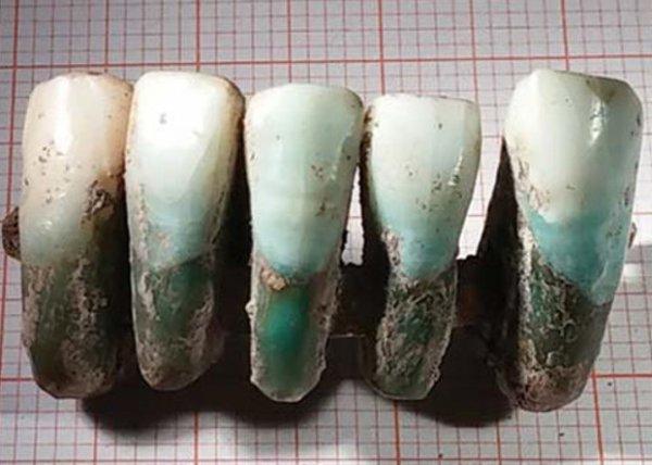 Специалисты в области археологии отыскали зубной протез, возраст которого составляет больше четырёхсот лет
